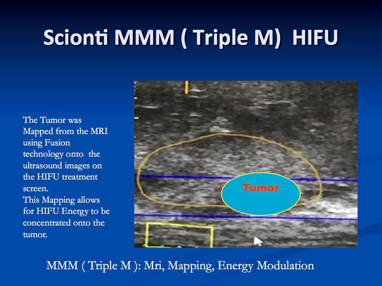 Scionti MRI guided HIFU treatment