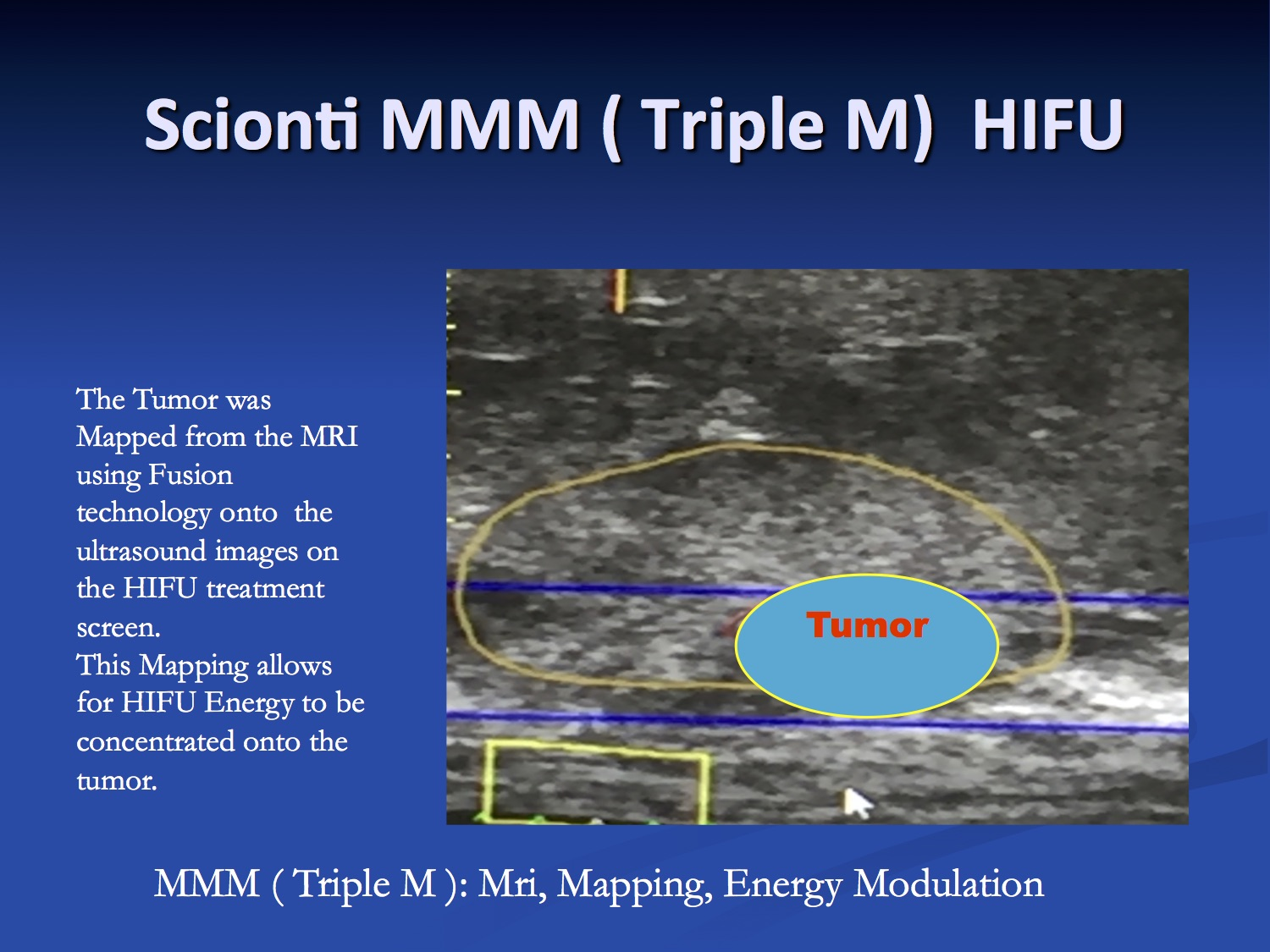 Scionti MRI guided HIFU treatment